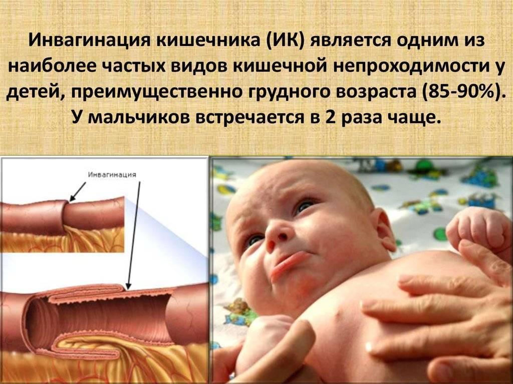 Кишечная непроходимость у новорожденного: что это такое, признаки, последствия