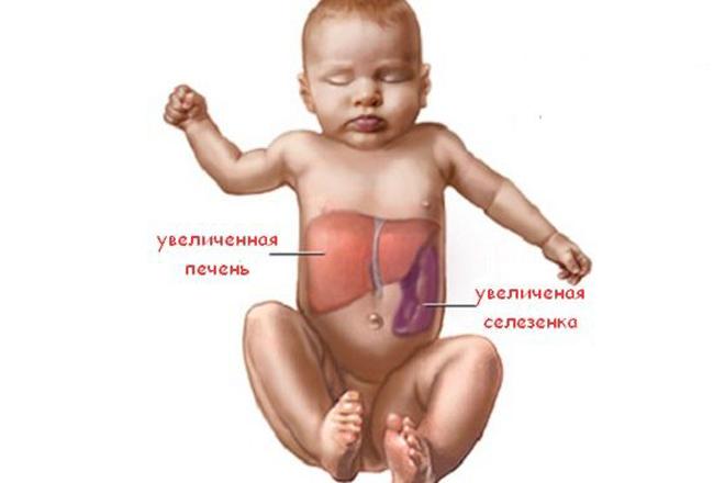 Увеличенная селезенка: причины и лечение спленомегалии у детей и взрослых