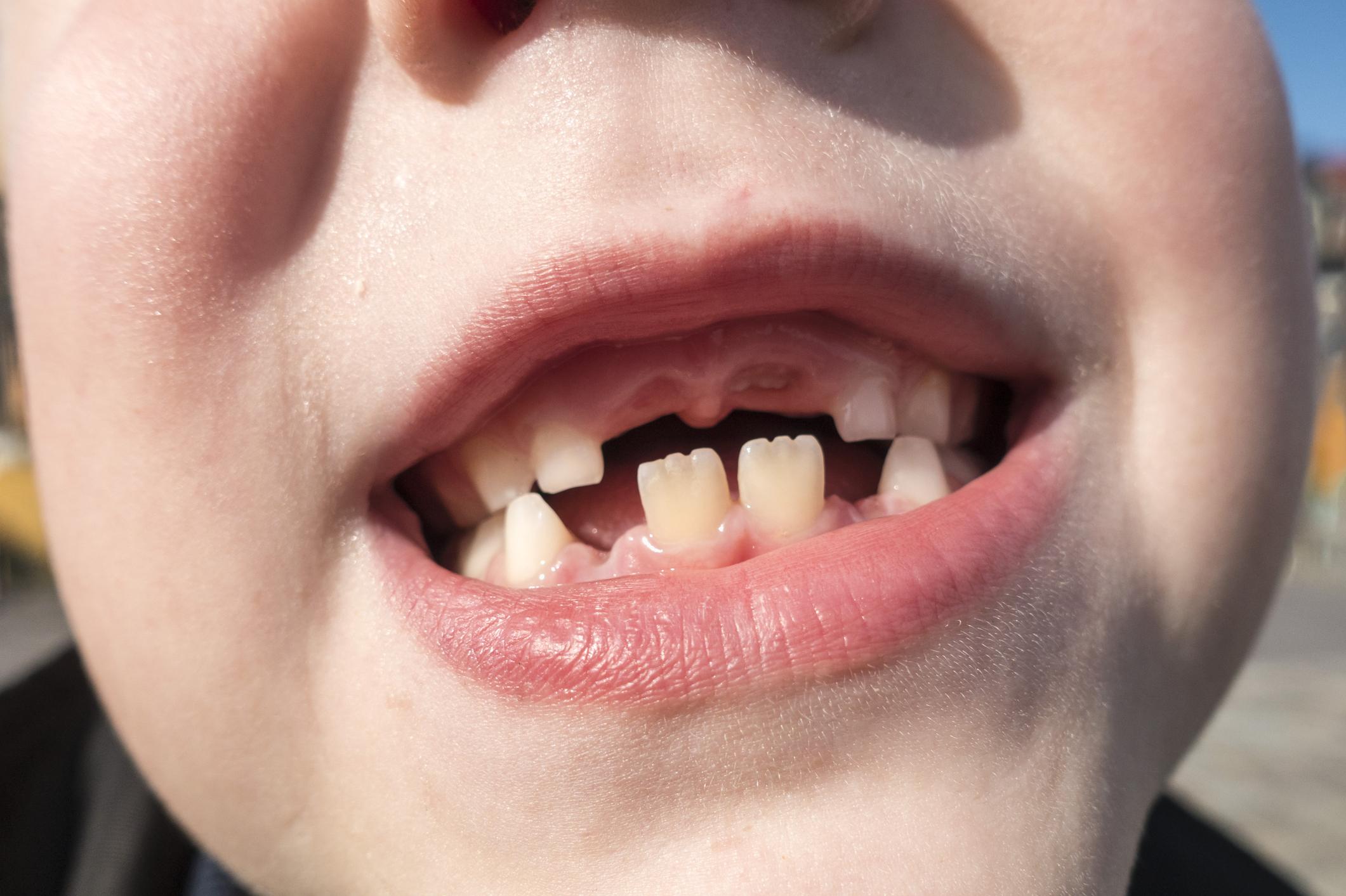 У ребенка криво растут зубы - почему и что делать?