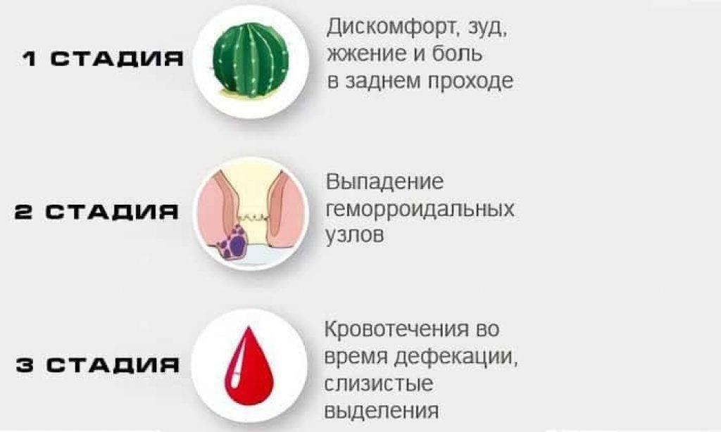 Причина боли при менструации в заднем проходе