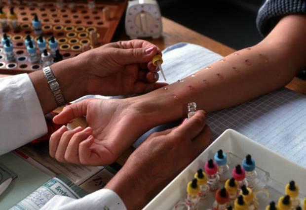 Сдать аллергопробы в москве: цены, расшифровка – кожные / провокационные тесты – анализы на аллергены – клиника цкб ран