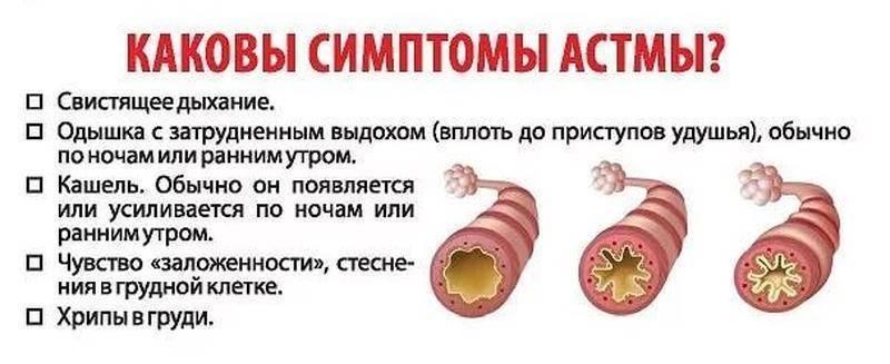 Бронхиальная астма у детей, симптомы, причины, лечение