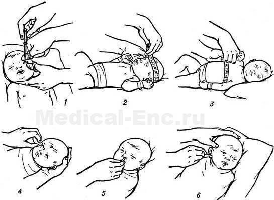 Правильное подмывание новорожденной девочки: как часто мыть и чем обрабатывать