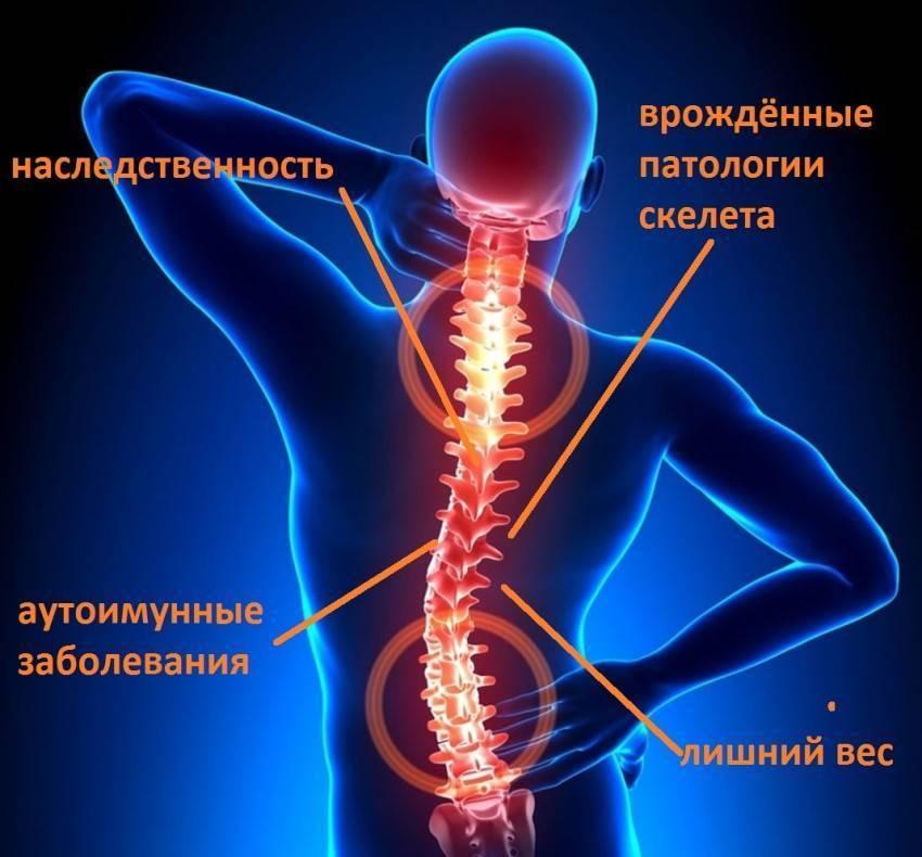 Что такое остеохондроз поясничного отдела позвоночника и чем он опасен