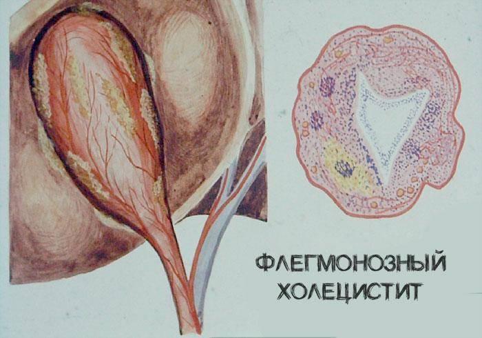 Холецистит у подростков симптомы лечение. симптомы и лечение холецистита у детей. симптомы развития холецистита у детей