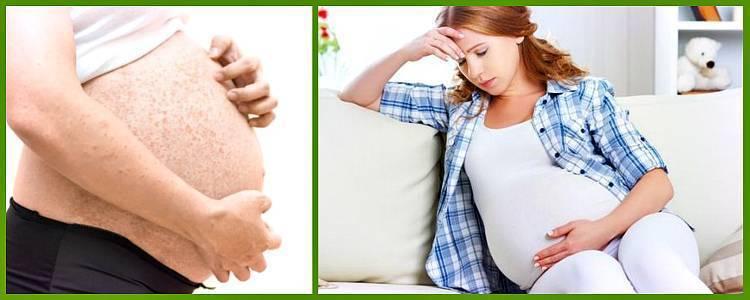 Чесотка у беременных симптомы - информация, которая удивляет