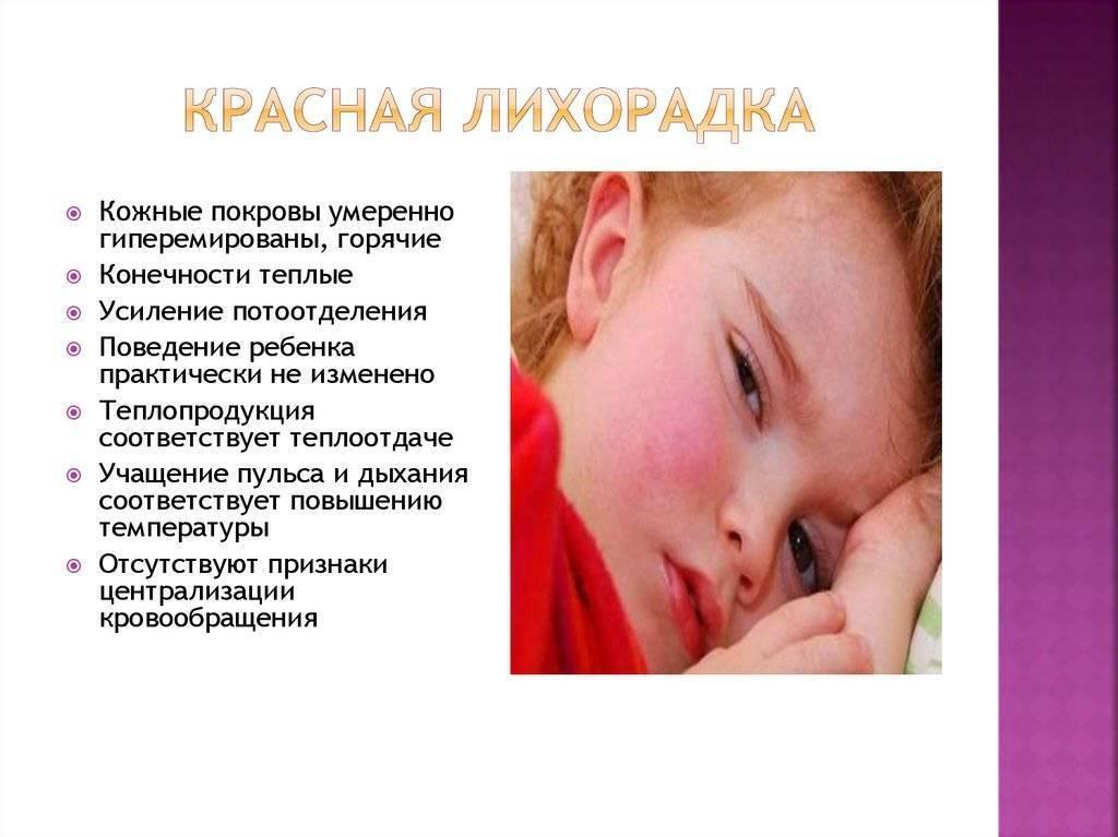 Белая лихорадка у ребенка и взрослого: симптомы, причины, лечение - всё о медицине