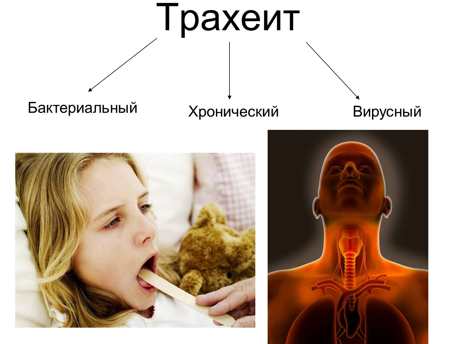 Трахеит у детей: симптомы, лечение