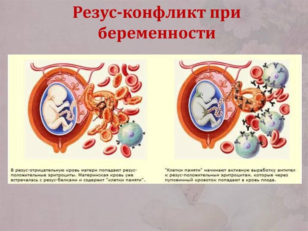 Отрицательный резус фактор у женщины при беременности:  опасность, последствия