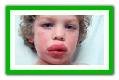 Что делать, если у ребенка или взрослого без причины опухла верхняя или нижняя губа, чем лечить отек? распухла верхняя губа. причины