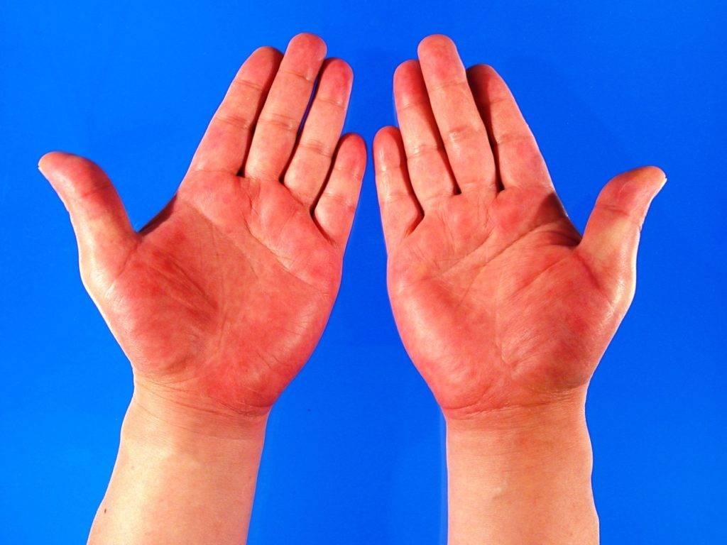 Псевдотуберкулез у детей симптомы фото начальная стадия фото как выглядит