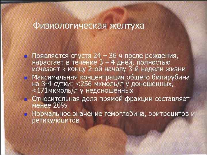 Желтуха у новорожденных: что мне с тобой делать, золотце мое?