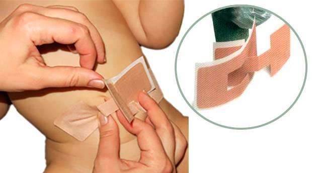 Пластырь для пупочной грыжи для новорожденных: для чего нужен и как правильно наклеить?
