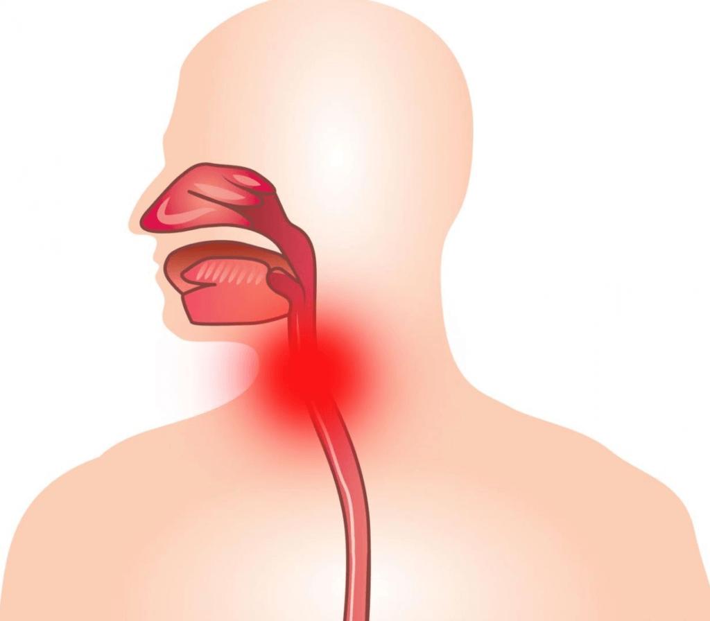 Заложено горло и кашель у ребенка лечение