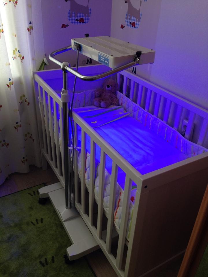 Фототерапия при желтухе у новорожденных | про-гастро