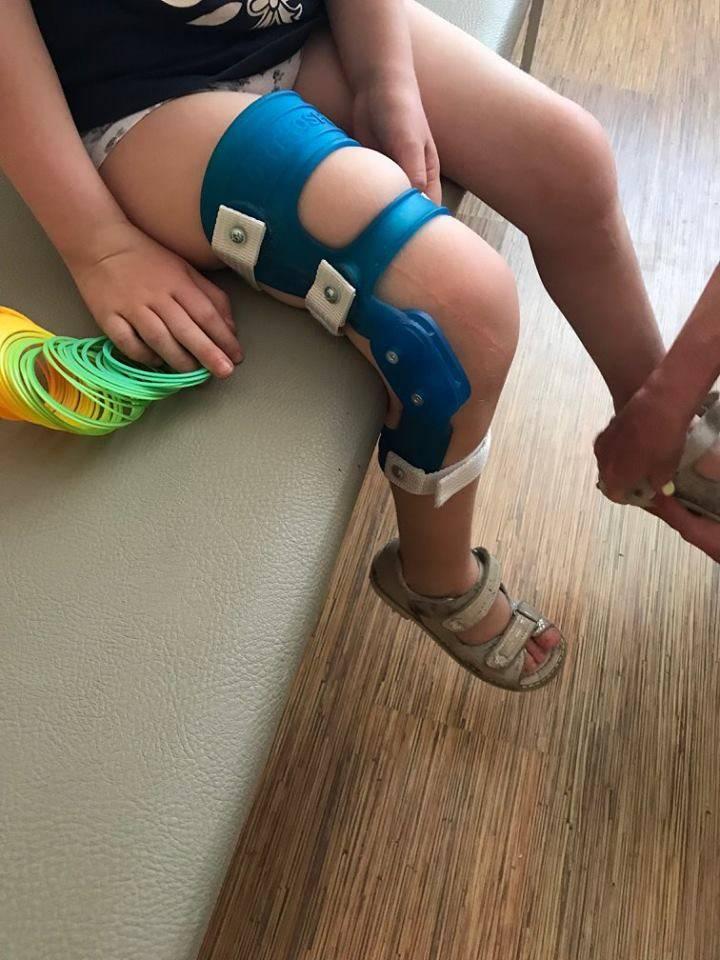 Вальгусная деформация коленных суставов у детей 3 лет