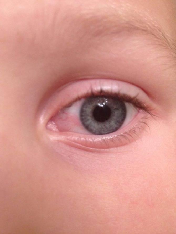 """Красные глаза у ребенка: причины, симптоматика и методы лечения - """"здоровое око"""""""