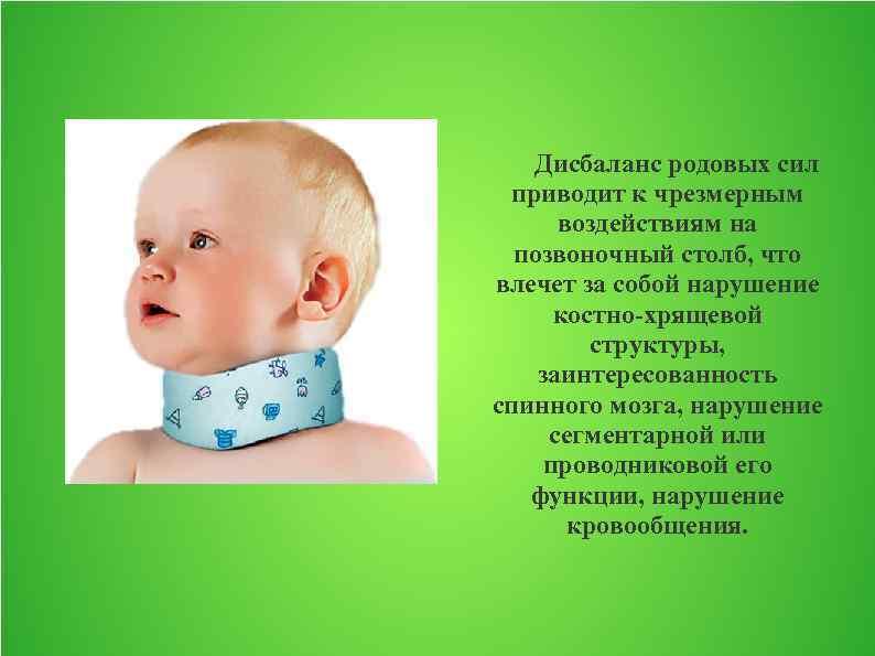 Родовая травма шейного отдела позвоночника у новорожденных. травма шейных позвонков у новорожденных симптомы. родовая травма шейного отдела позвоночника у новорождённых последствия