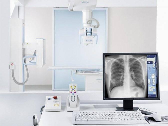 Рентген при грудном вскармливании и грудничкам: можно ли делать, последствия