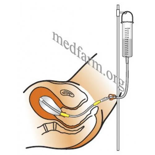 Катетер фолея для стимуляции родов: установка для стимуляции, последствия и осложнения