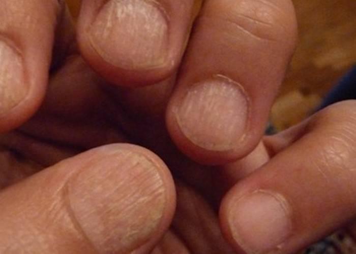 Почему слоятся ногти на ногах и что с этим делать?
