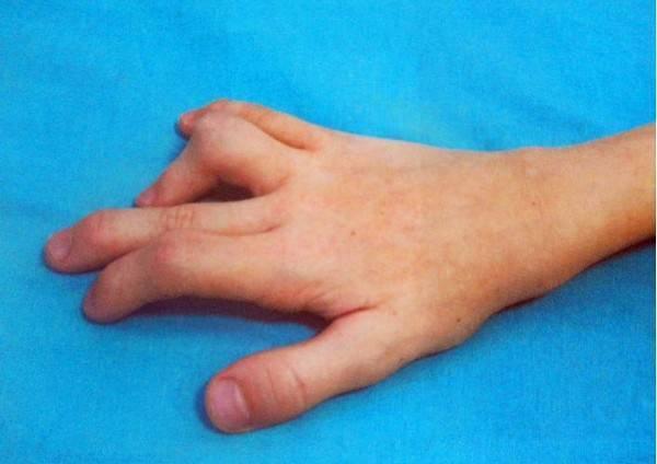 Болезнь нотта: причины, симптомы и методы лечения