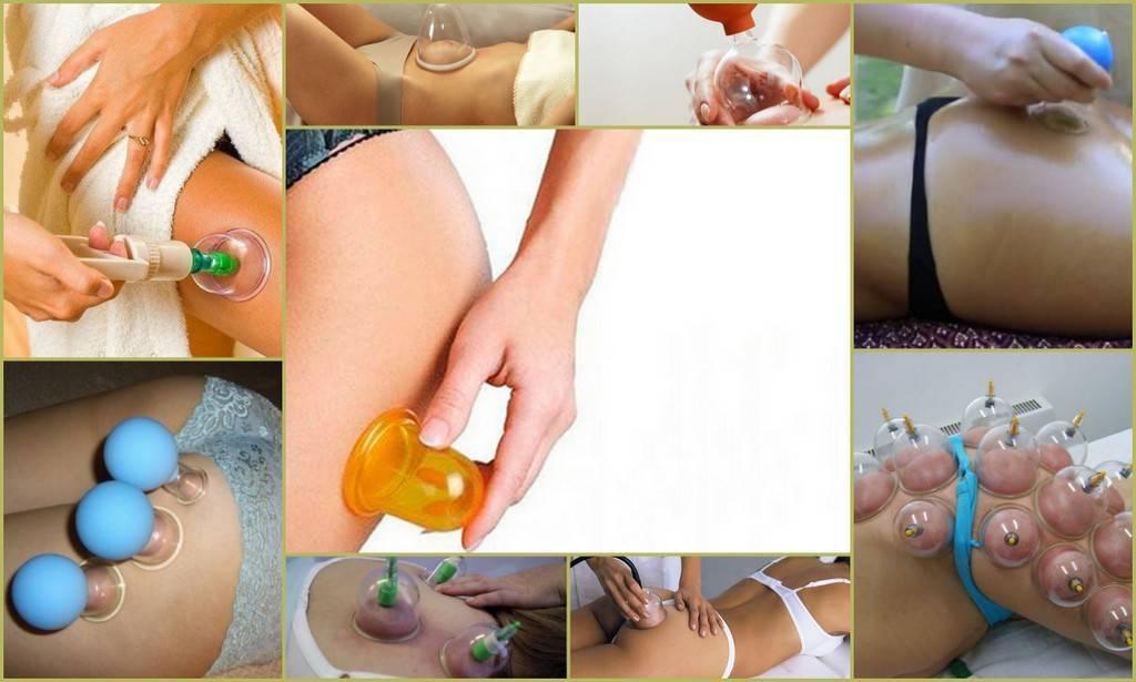 Можно ли делать антицеллюлитный массаж во время беременности?