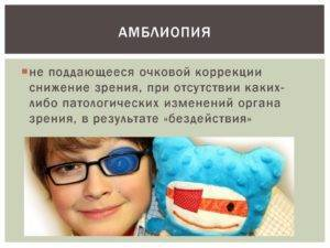 Причины и лечение амблиопии у детей