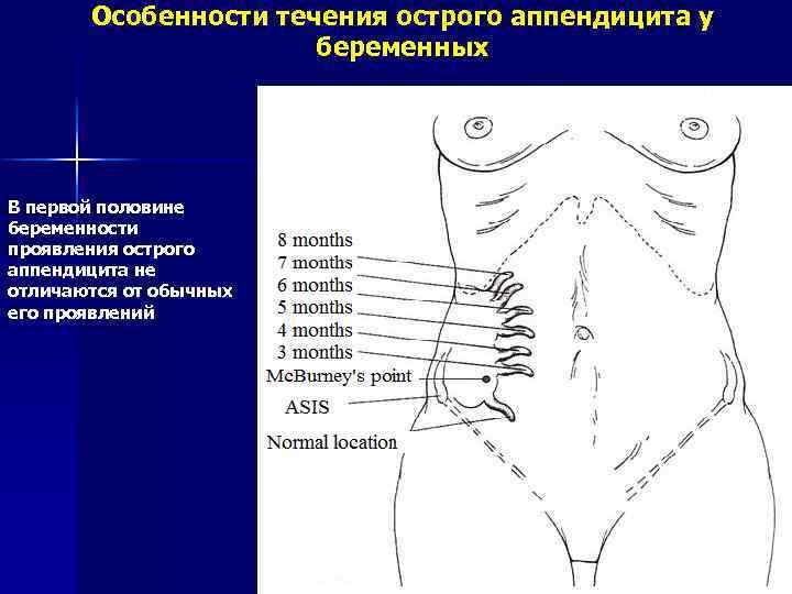 Аппендицит при беременности: симптомы, признаки, что делать отзывы
