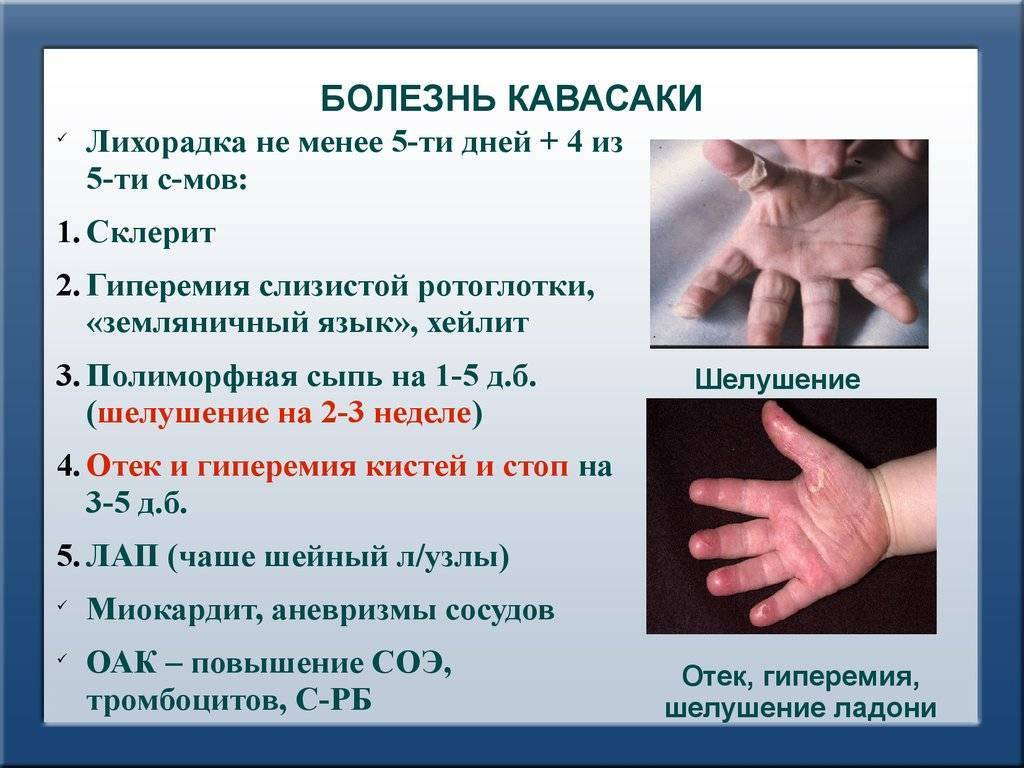Болезнь (синдром) кавасаки: причины, симптомы, диагностика и лечение
