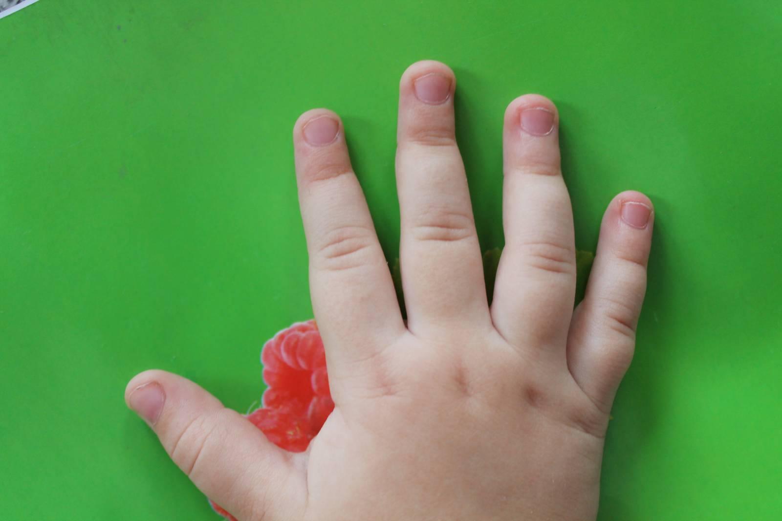 У ребенка слоятся ногти на ногах и руках – почему и что делать