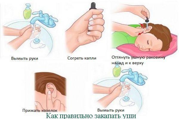 Применение компрессов при ушной боли у ребенка: виды и их особенности