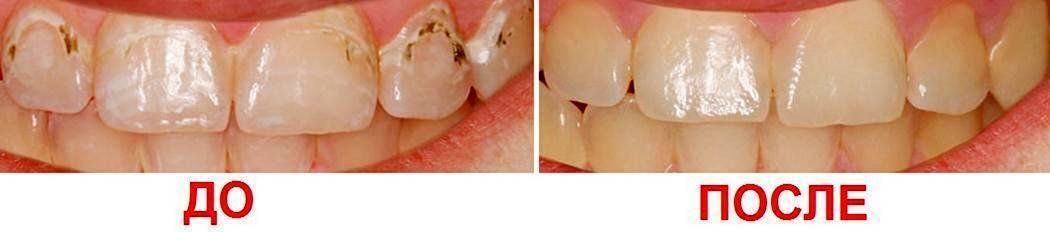 Виды и особенности фторирования зубов у детей