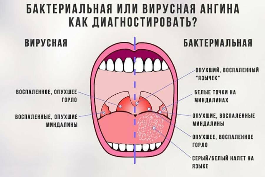 Красная задняя стенка горла у ребенка