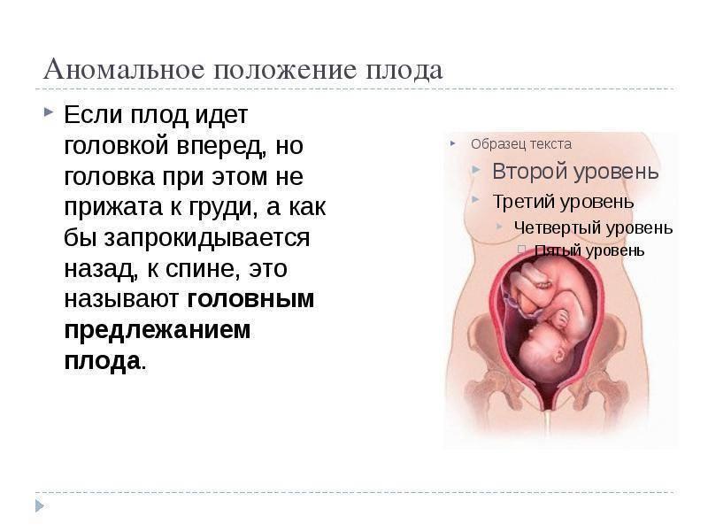 Головное предлежание плода: что это такое при беременности, его виды и позиции