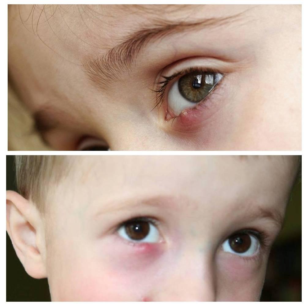 Ячмень на глазу у ребенка: как быстро вылечить в домашних условиях