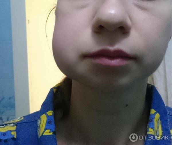 Почему у ребенка опухла щека