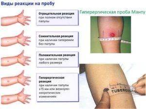 Аллергия на манту у детей и взрослых: причины, симптомы и лечение