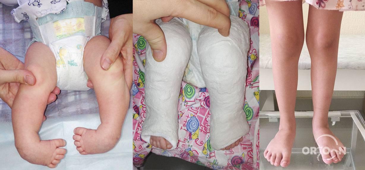 Лечение варусной деформации стоп у детей