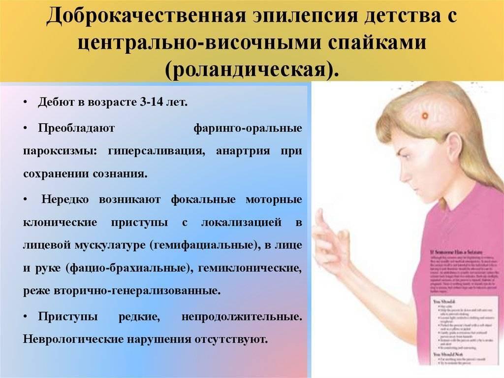 Особенности роландической эпилепсии у детей: симптомы, причины и лечение заболевания