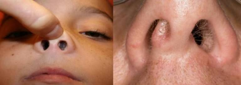 У ребенка полипы в носу (32 фото): что это, симптомы и лечение, что делать при полипах в пищеводе или матке у девочки-подростка
