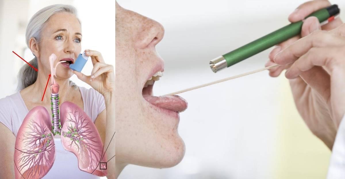Першит в горле и сухой кашель – лечение и причины