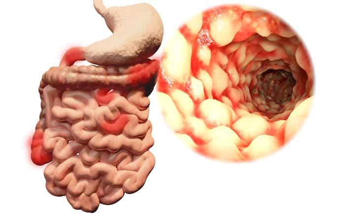 Заболевание кишечника симптомы у детей