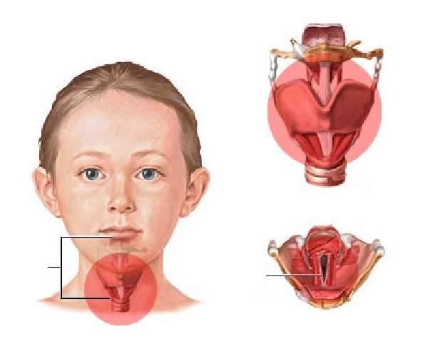 Отек горла: оказание первой помощи и способы лечения ребенка