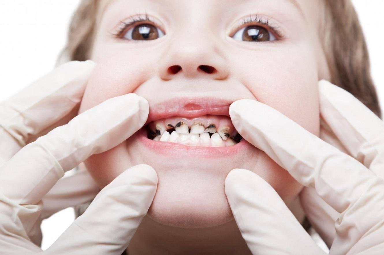 Серебрение зубов у детей: фото, отзывы