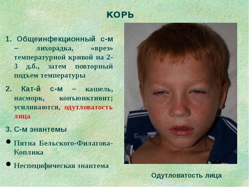 Корь у детей: симптомы, лечение и профилактика с фото примерами