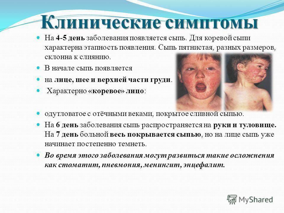Серозный менингит у детей: симптомы, инкубационный период, лечение