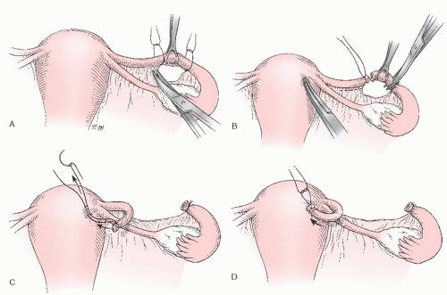 Перевязка маточных труб, плюсы и минусы, последствия