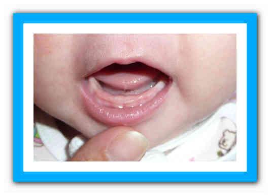 Молочница у ребенка во рту: симптомы, лечение и фото