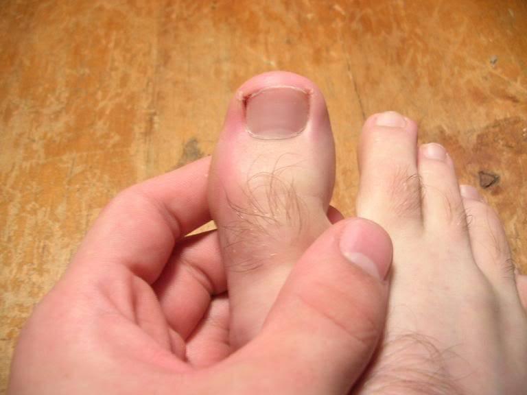 Как быстро вылечить нарыв на пальце возле ногтя или панариций